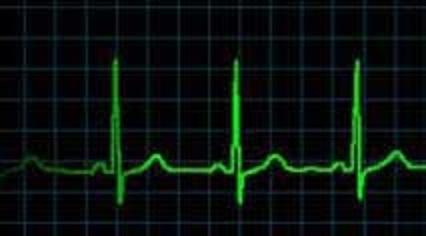 three heartbeats x2